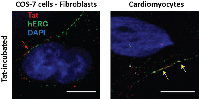 This figure shows that HIV-Tat is detected intracellularly in human cardiomyocytes but not simian fibroblasts (COS-7), after a 24h external application (200 ng/ml). Tat immunostaining is shown in red, plasma membrane is identified by hERG channel immunostaining (green), nucleus is in blue (DAPI). Tat remains in the extracellular compartment of COS-7 cells (red arrow) while in human cardiomyocytes, Tat is located inside the cytoplasm (asterisks) and colocalizes with hERG at the plasma membrane (yellow arrows).* (Adapted from Es-Salah-Lamoureux et al, 2016, JMCC 99:1-13, with permission.)