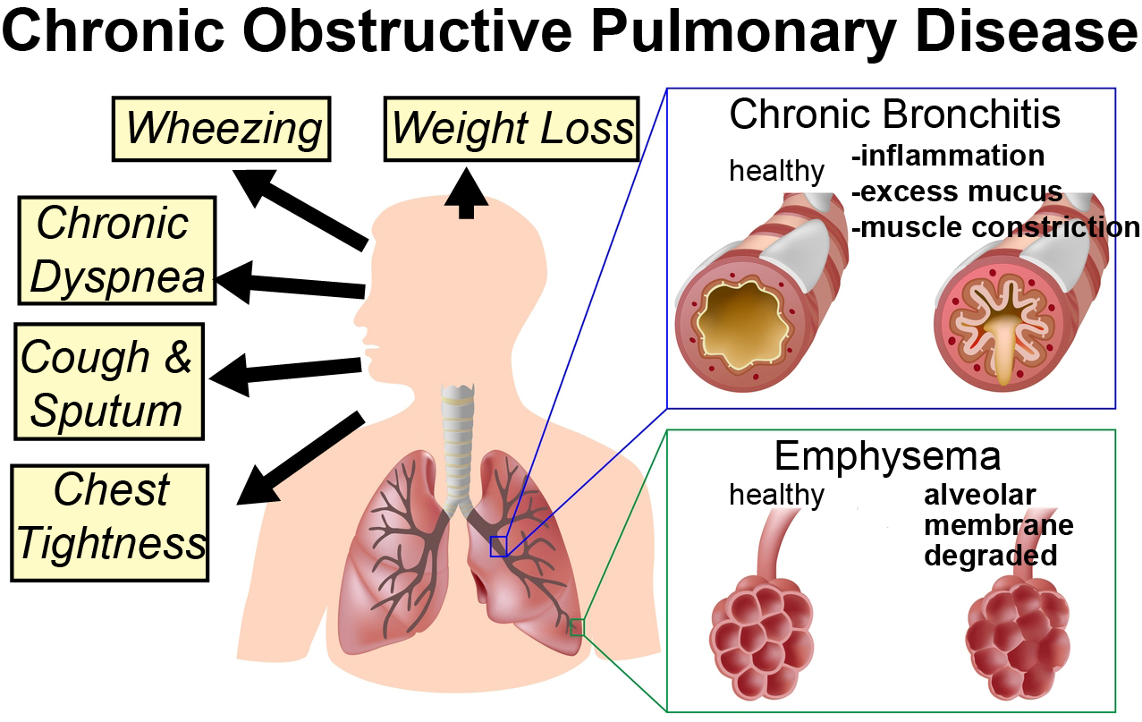Image result for COPD