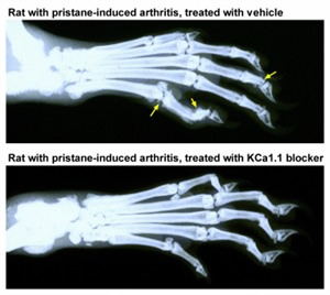 Rheumatoid Arthritis and Biophysics