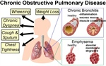Molecular Mechanisms of Inflammatory Signaling in COPD